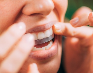The Best Teeth Whitening Hacks From TikTok
